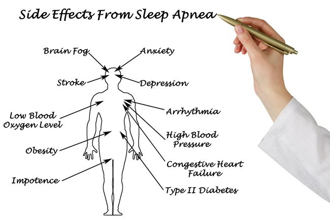 What S A Cpap And How Does It Work